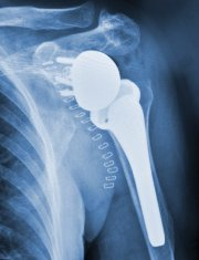 Shoulder Replacement X-ray